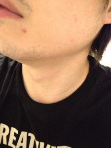 髭脱毛にケノンを試してみたい