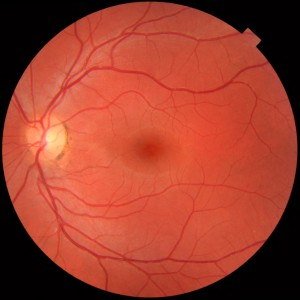 Fundus_photograph_of_normal_left_eye